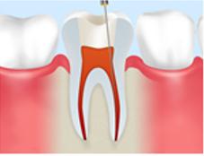 汚染された組織や歯質の除去
