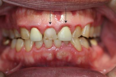 歯ぐきの腫れ・出血