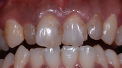 歯の色と形が気になって・・・
