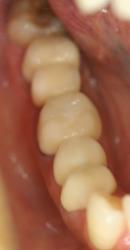 銀歯が気になる方向けの審美治療