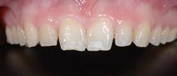 歯の隙間(歯の大きさ)の改善