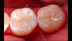 むし歯をセラミックインレーで修復