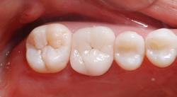奥歯のメタルボンドをオールセラミックスクラウンに付け替え